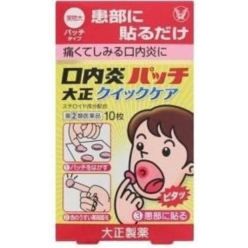 口内炎 パッチ 効果