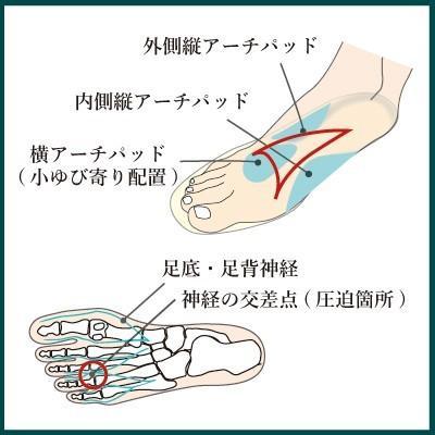 インソールプロ モートン病 対策 アーチパッド 中敷き インソール 衝撃吸収 メンズ shoesfit 04