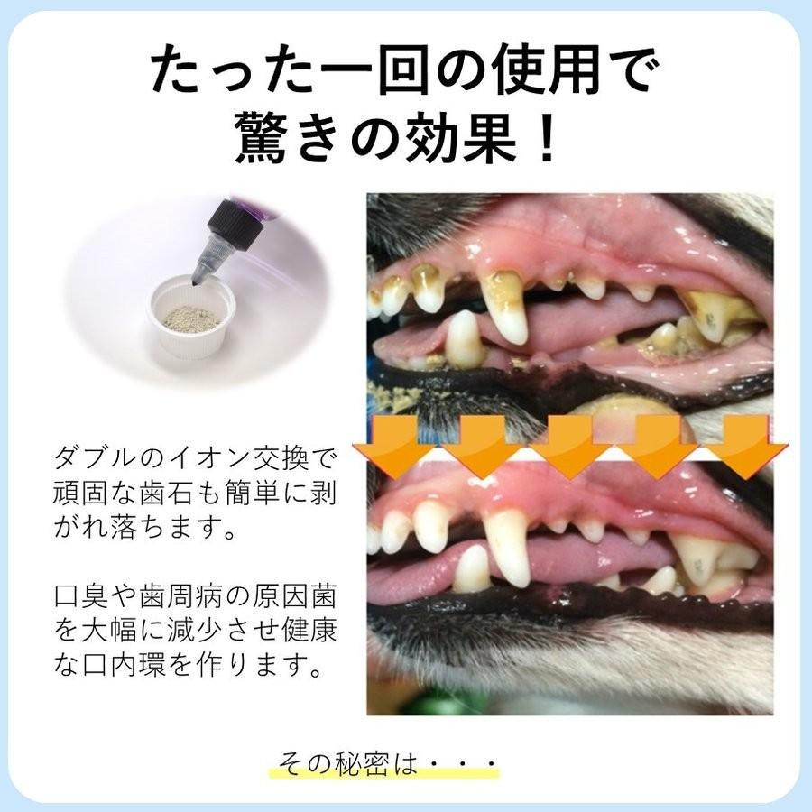 痛い 歯石 取り