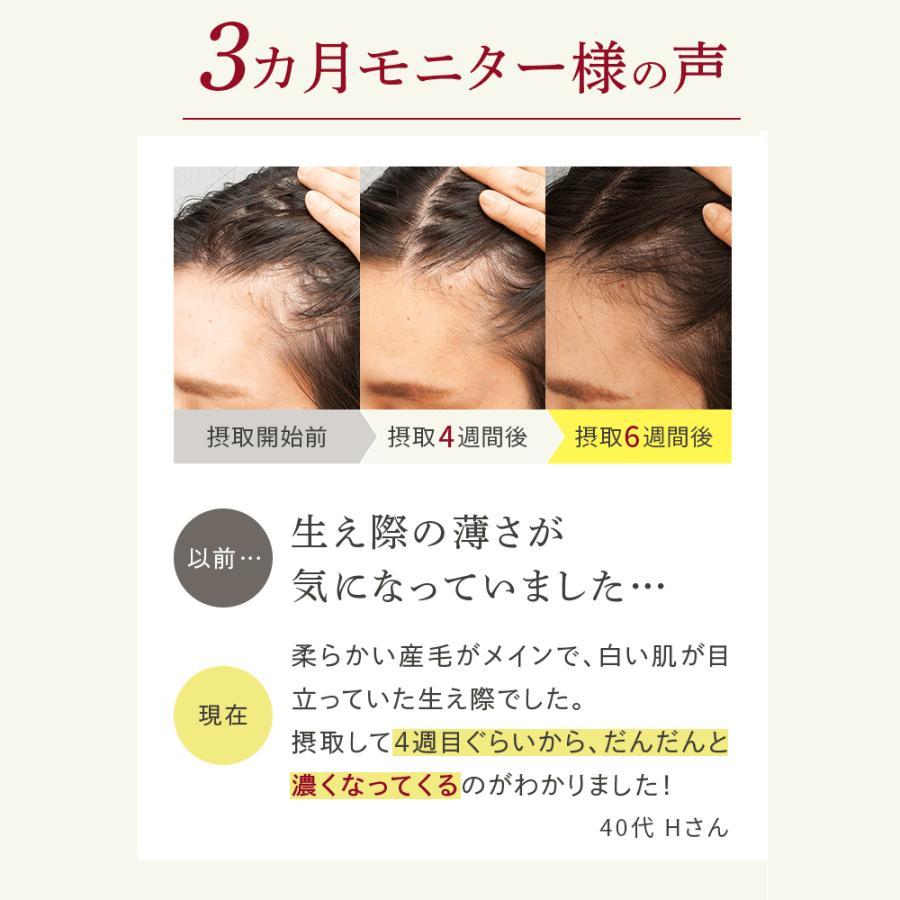 HAIR PERFECTOR with KERANAT(ヘアパーフェクターウィズ ケラナット)TM| レソンスボタニーク 育毛 サプリ|shozankan-cocoil|10
