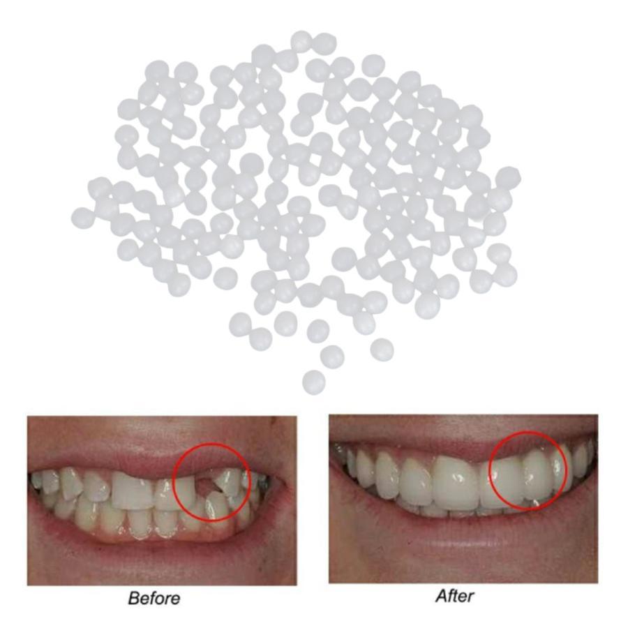 サーマルビーズ歯ベニア成形可能義歯仮歯修復ツール5g 新作 市場