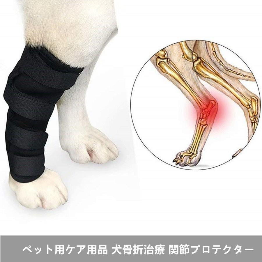 リハビリ 膝蓋骨 骨折