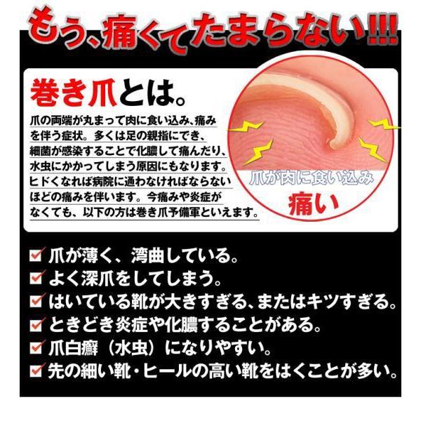 巻き爪 巻爪 ワイヤーガード 治療 矯正 治し方 自分で 一般医療機器 リフト ブロック テープ 矯正器具 1箱 1ヶ月分 日本製 wide02 04