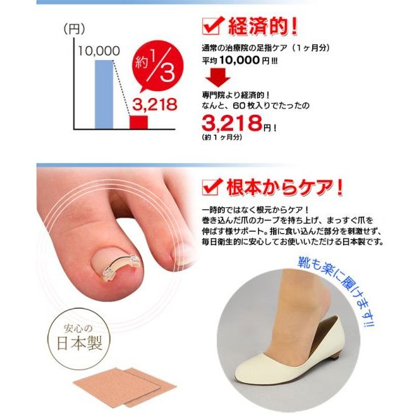 巻き爪 巻爪 ワイヤーガード 治療 矯正 治し方 自分で 一般医療機器 リフト ブロック テープ 矯正器具 1箱 1ヶ月分 日本製 wide02 05