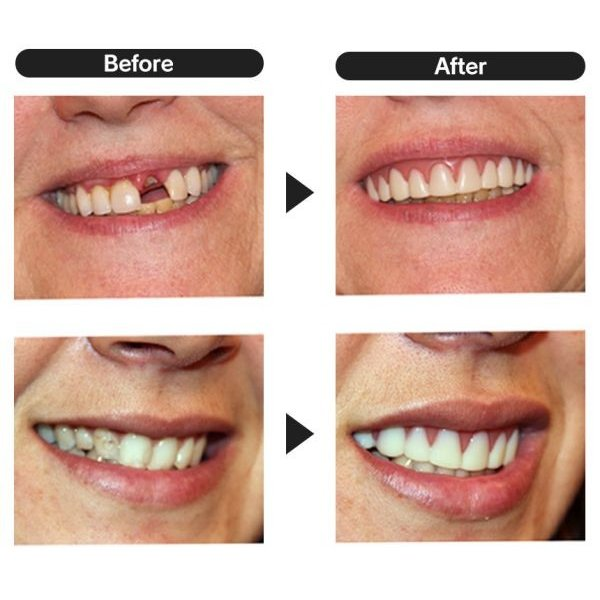 入れ歯 上の歯 上歯用 付け歯 前歯 義歯 歯の悩み 脱着 黄ばみ歯 欠け歯 すきっ歯 インスタントスマイル wide02 04
