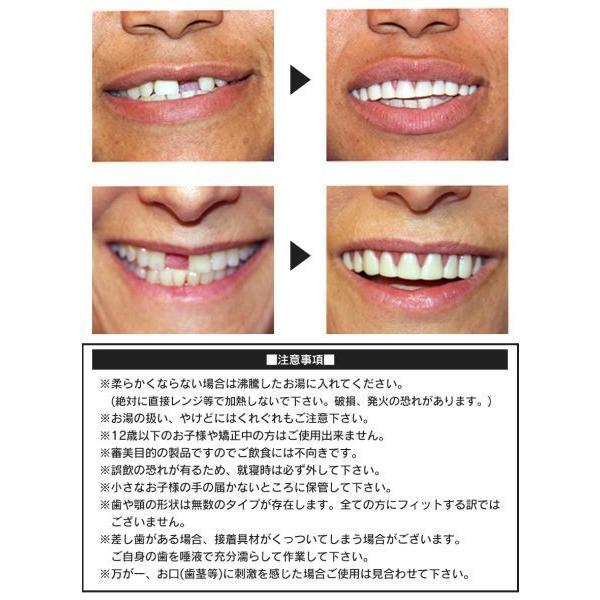 入れ歯 上の歯 上歯用 付け歯 前歯 義歯 歯の悩み 脱着 黄ばみ歯 欠け歯 すきっ歯 インスタントスマイル wide02 05
